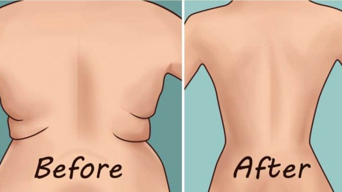 how to remove underarm and back fat